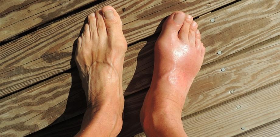 Guta – cauze, tratament si prevenire