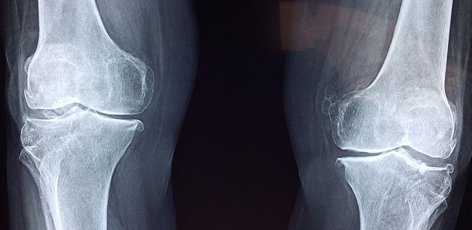 afectiunile genunchiului diagnostic