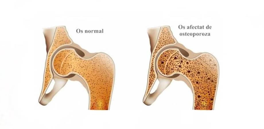 osteoporoza osoasa