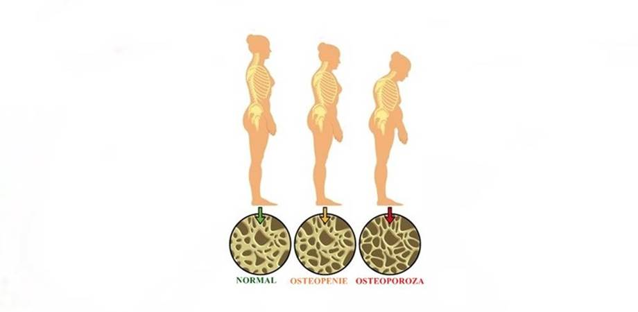 osteoporoza si DEXA