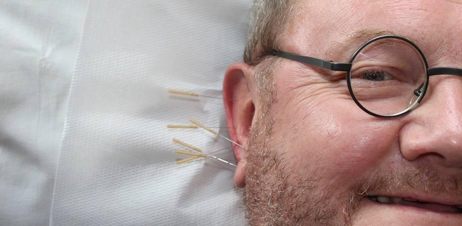 acupunctura tipuri
