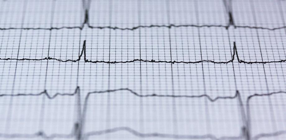 Insuficienta cardiaca: incidenta si nevoia de tratament