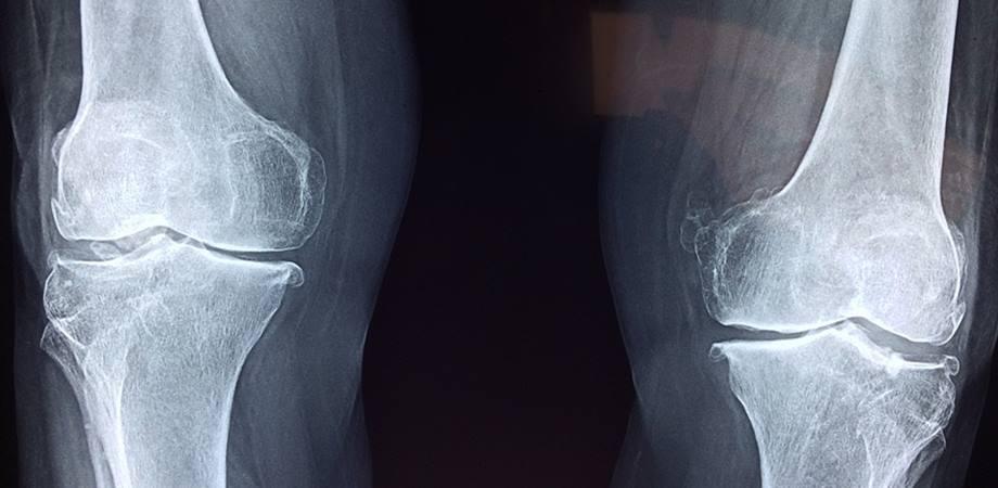 radiografia osoasa