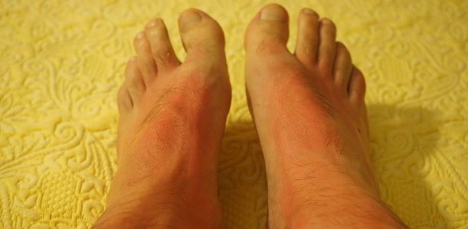 alergia solara simptome fotosensibilitate
