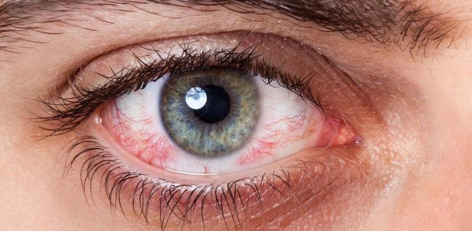 picaturile de ochi cand sunt indicate