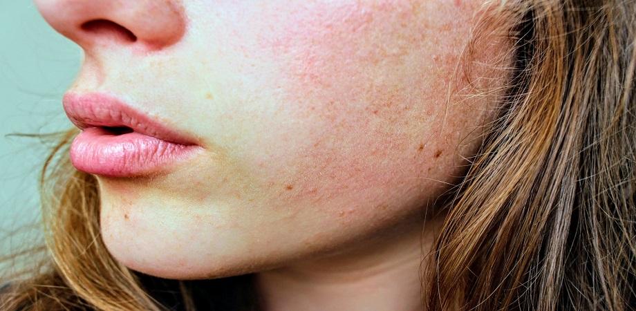 Dermatita atopica, boli dermatologice