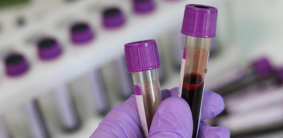 Factorul Rh, hematologie