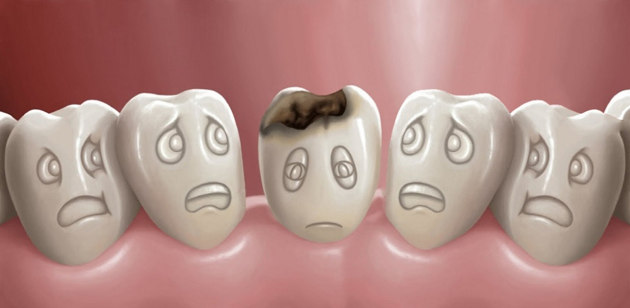 cariile dentare tipuri