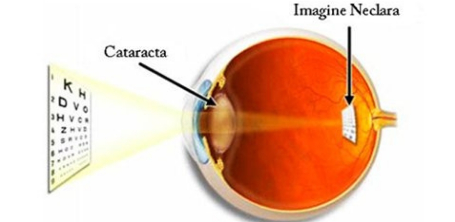 cataracta simptome