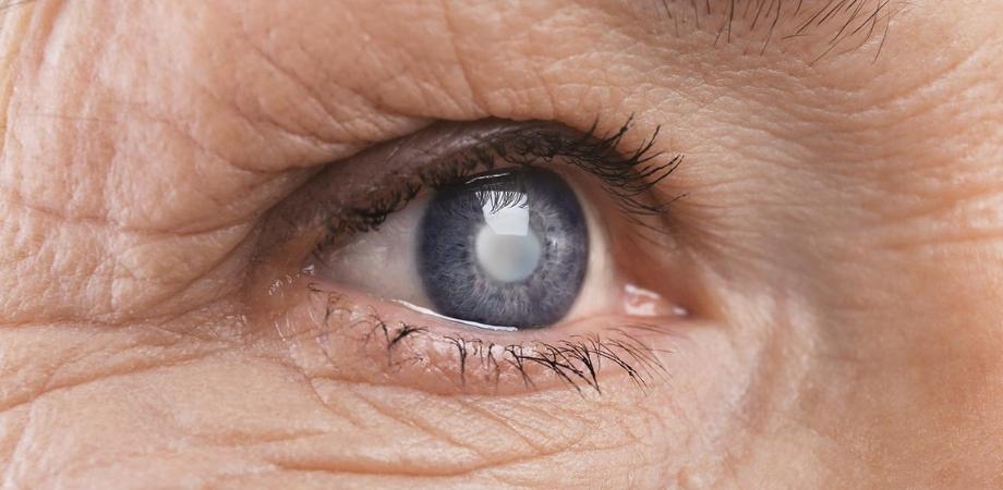 cataracta, boli oftalmologice