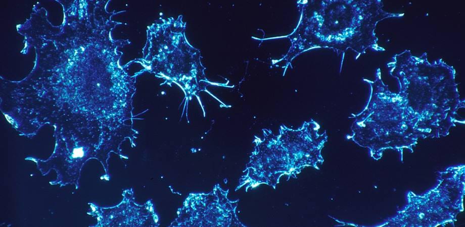 diagnostic cancer ovarian