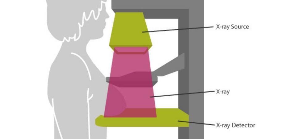 mamografie procedura