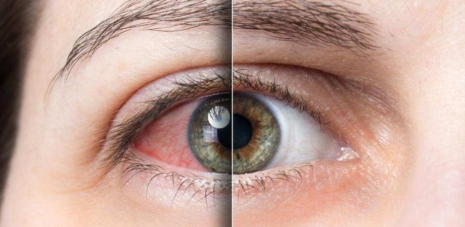 sindromul de ochi uscat, boli oftalmologice