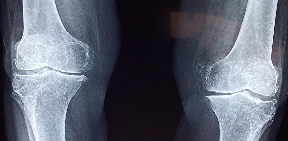 Fracturi, boli ortopedice