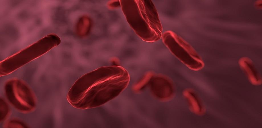 Leucemie, boli oncologice