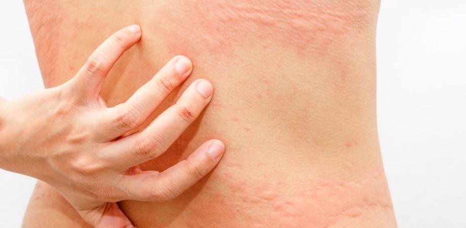 urticaria simptome