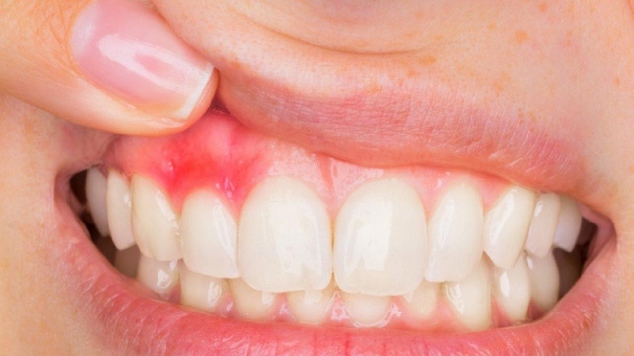 Eroziunea dentară