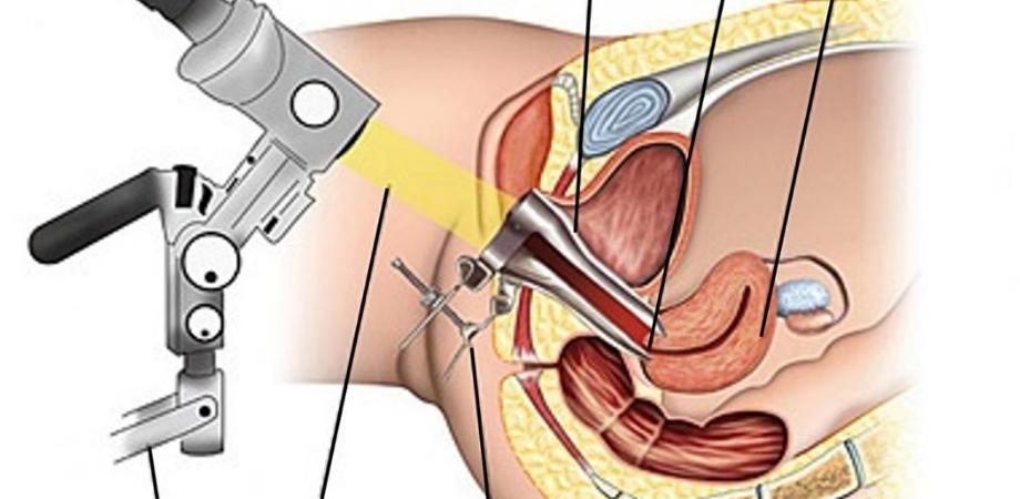 cervicita diagnostic colposcopia