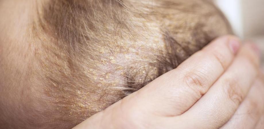 dermatita seboreica la bebelusi