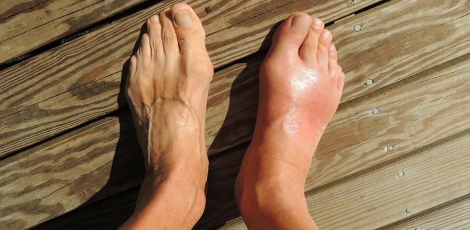 durerea de glezna simptome