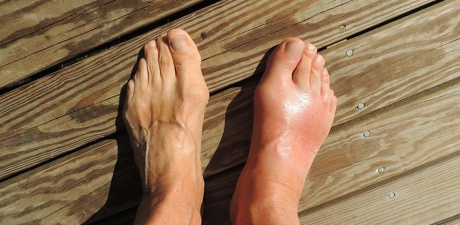 simptomele piciorului diabetic