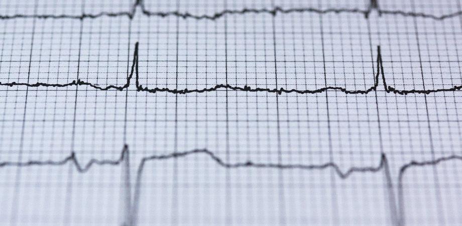 Sindromul hiperkinetic cardiovascular