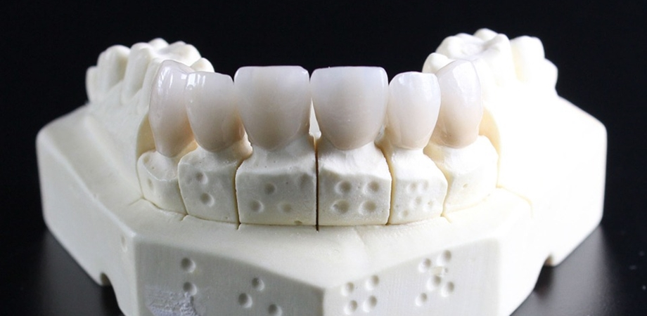 dinte fals implant dentar