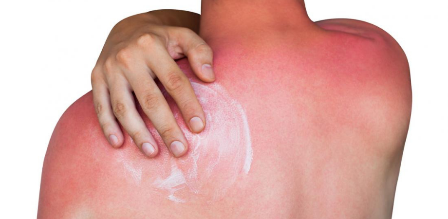 simptome arsuri solare