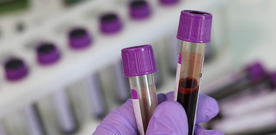 testarea imunoglobulinelor