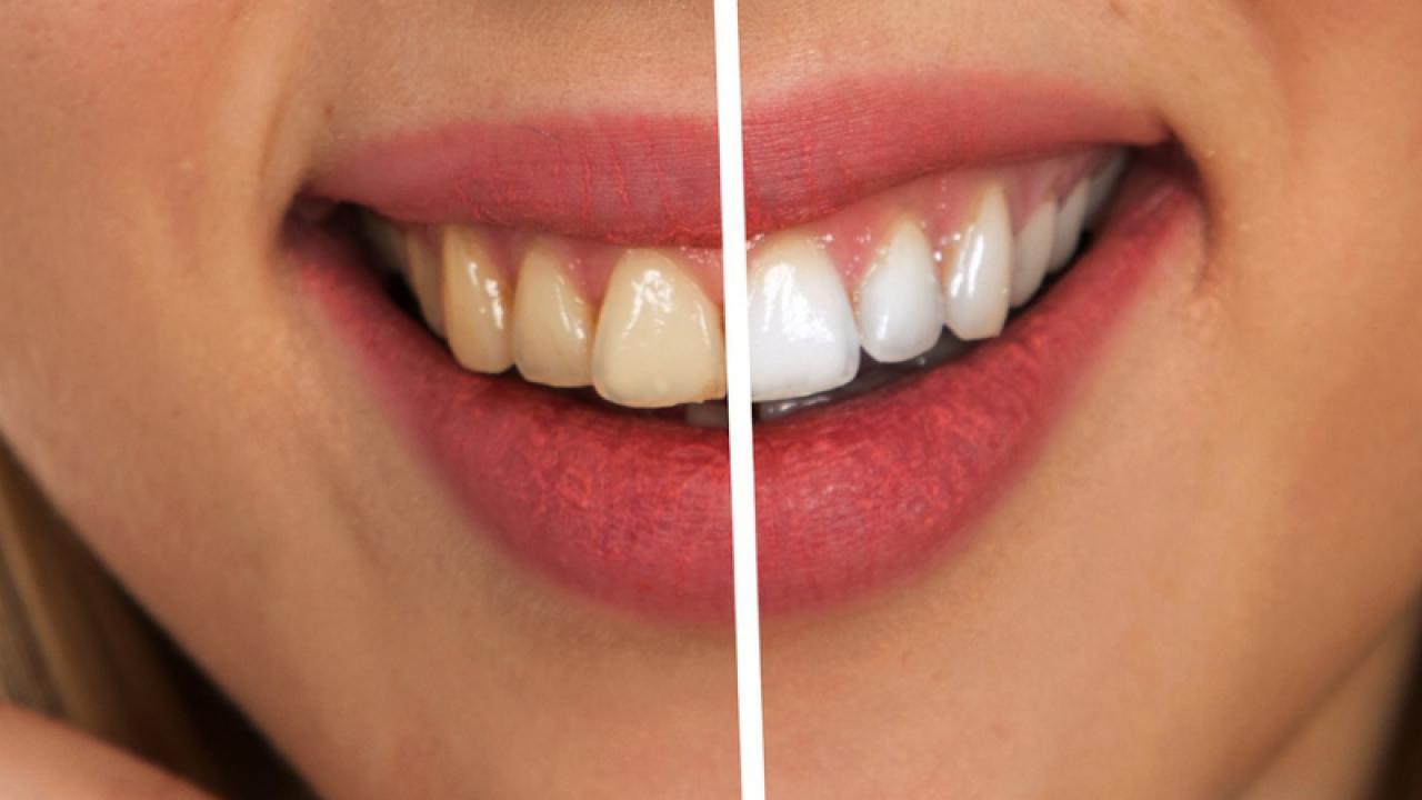 Albirea dintilor afecteaza smaltul