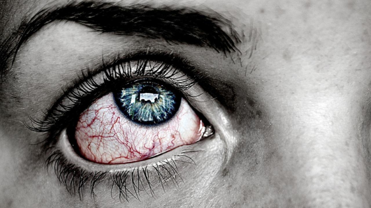 cum să îndepărtați ochii roșii de oboseală