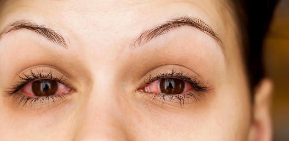 ochi rosii cauze