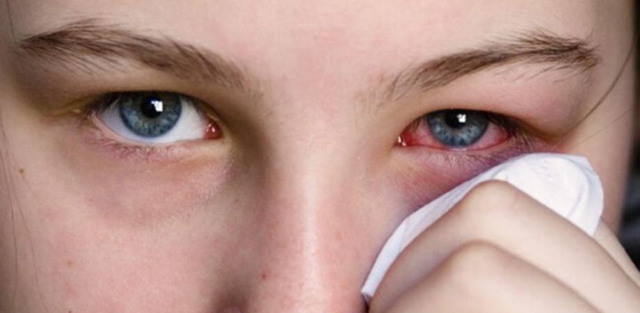 ochi rosii la copii
