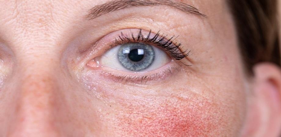 rozacee forme simptome tratament