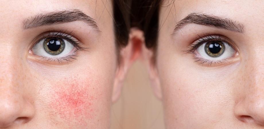 rozaceea cauze simptome tratament preventie