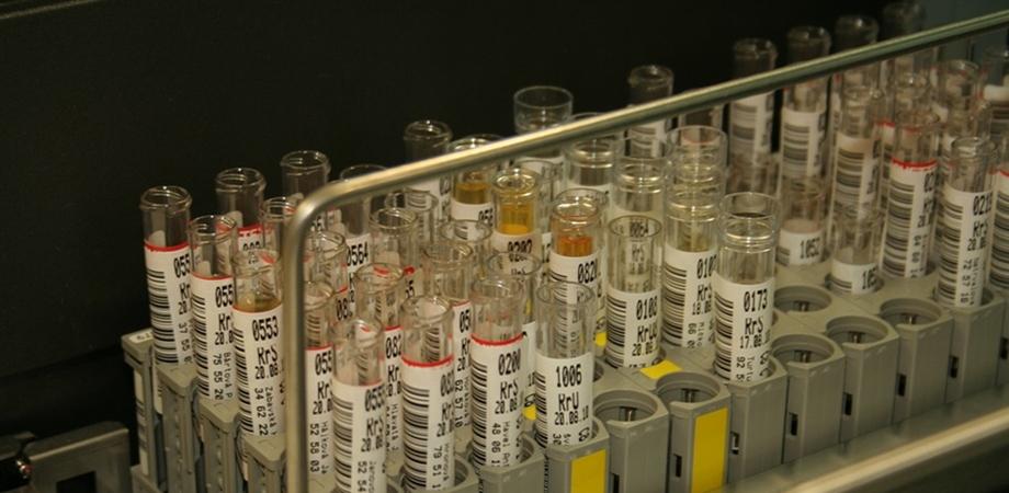 teste de urina