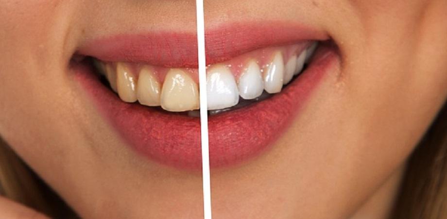 Avantajele folosirii atei dentare