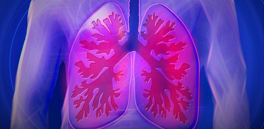Edem pulmonar
