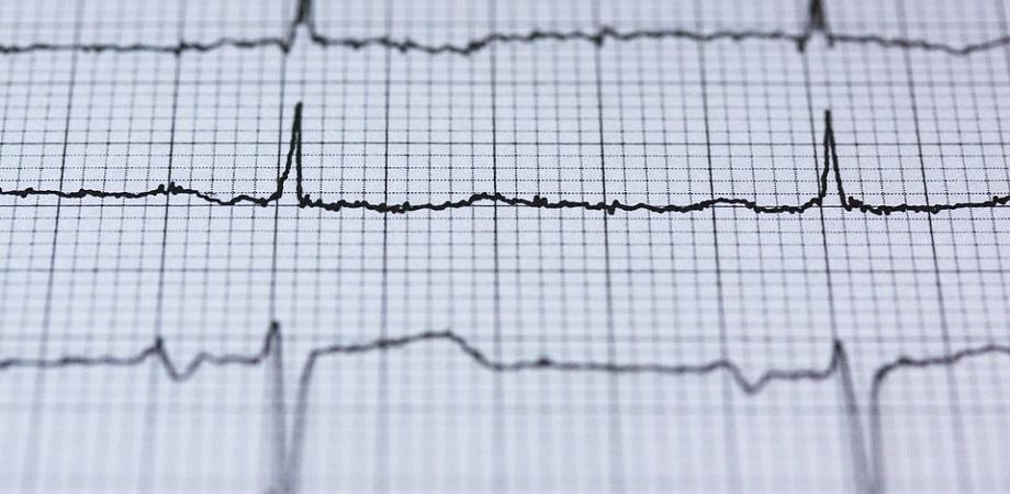 Cand se recomanda realizarea unui EKG?