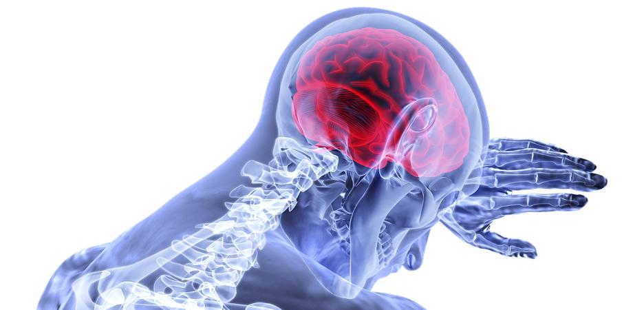 Hemoragie cerebrala: cauze