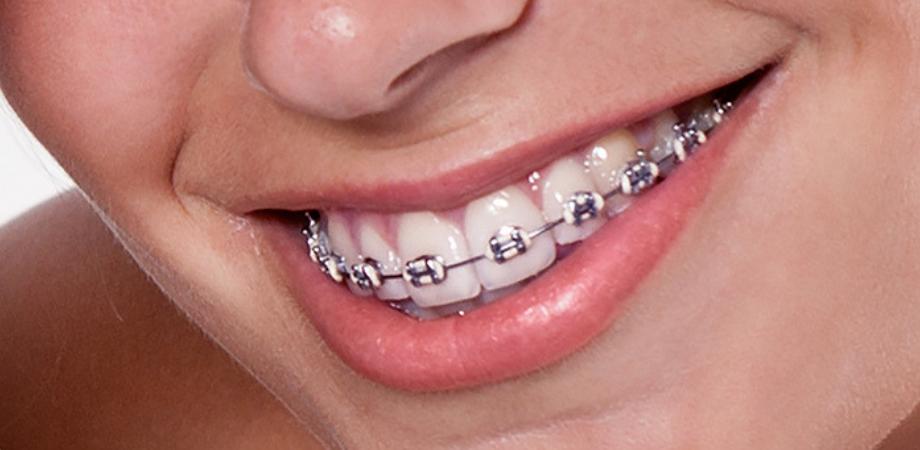 ce este un aparat dentar