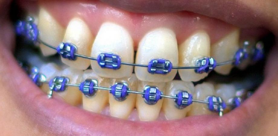 beneficii apart dentar