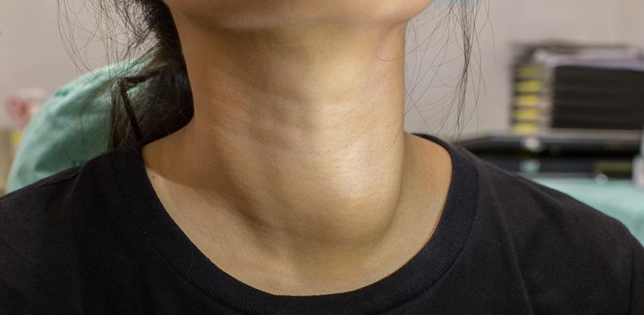 boli tiroida femei