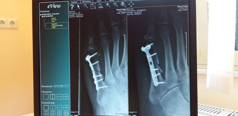 repozitionare dupa fracturi
