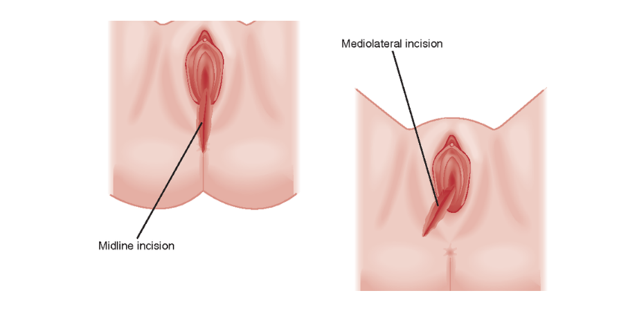 epiziotomia tipuri