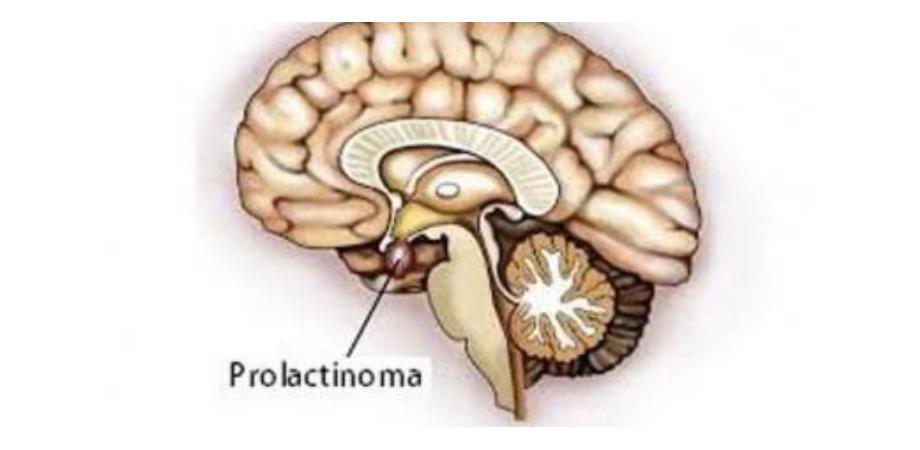 prolactinomul simptome