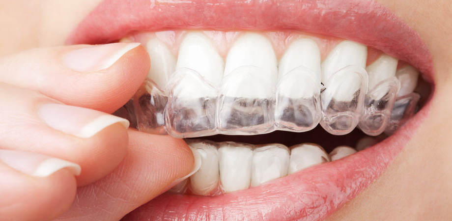 tipuri de aparat dentar