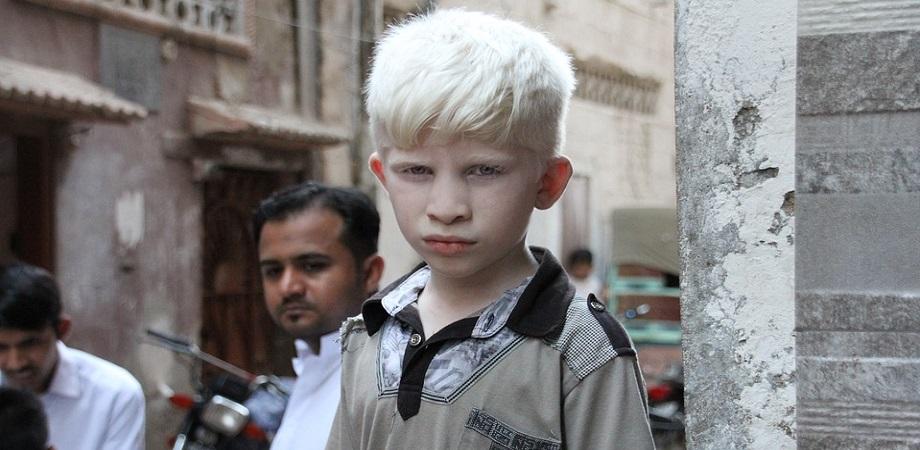 Cum se trateaza albinismul?