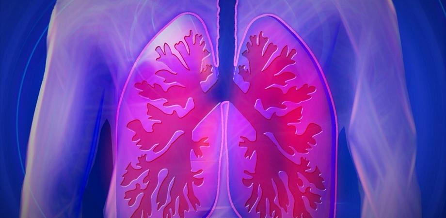 ce este pneumonia
