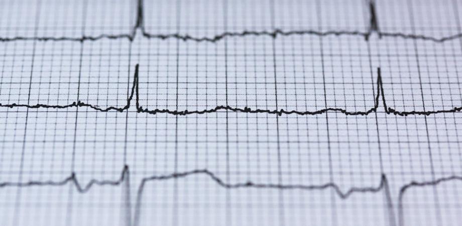 diagnostic boli de inima
